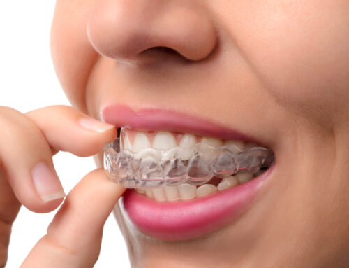 Is Invisalign Right for You?
